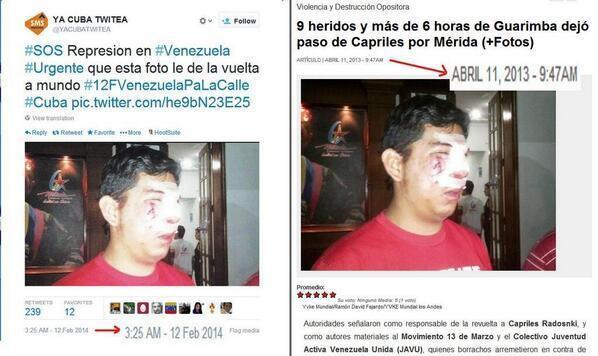 Dieser junge Mann soll ebenfalls als Beweis für die Brutalität der Regierung dienen. Allerdings zeigt das Bild wohl einen Chavisten, der im April 2013 von Anhängern der Opposition verletzt wurde